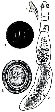 как выглядят паразиты в человеке